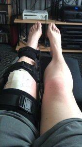 The Better Leg brace